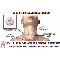 Thyroid Doctor in Himayat Nagar - Dr.JP Kotla Medical Centre